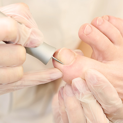 pedicure-behandeling